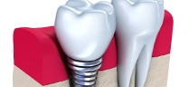 DANTAL IMPLANTS